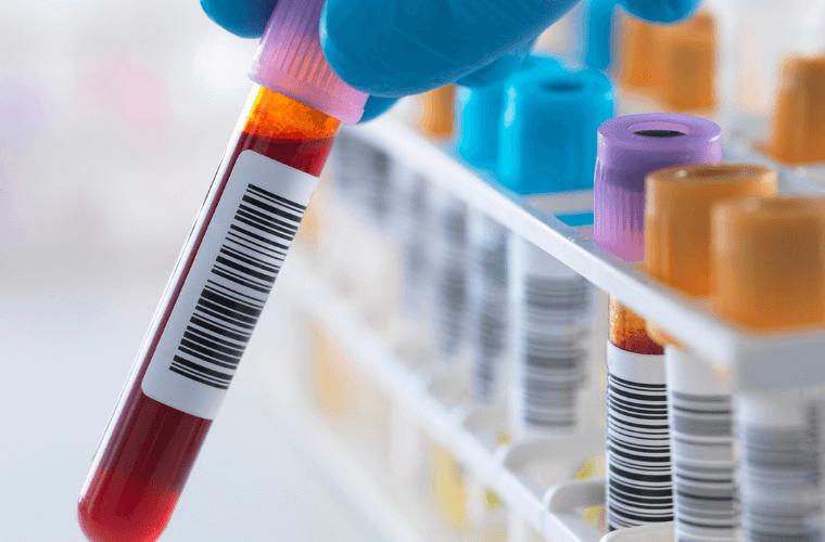covid blood test